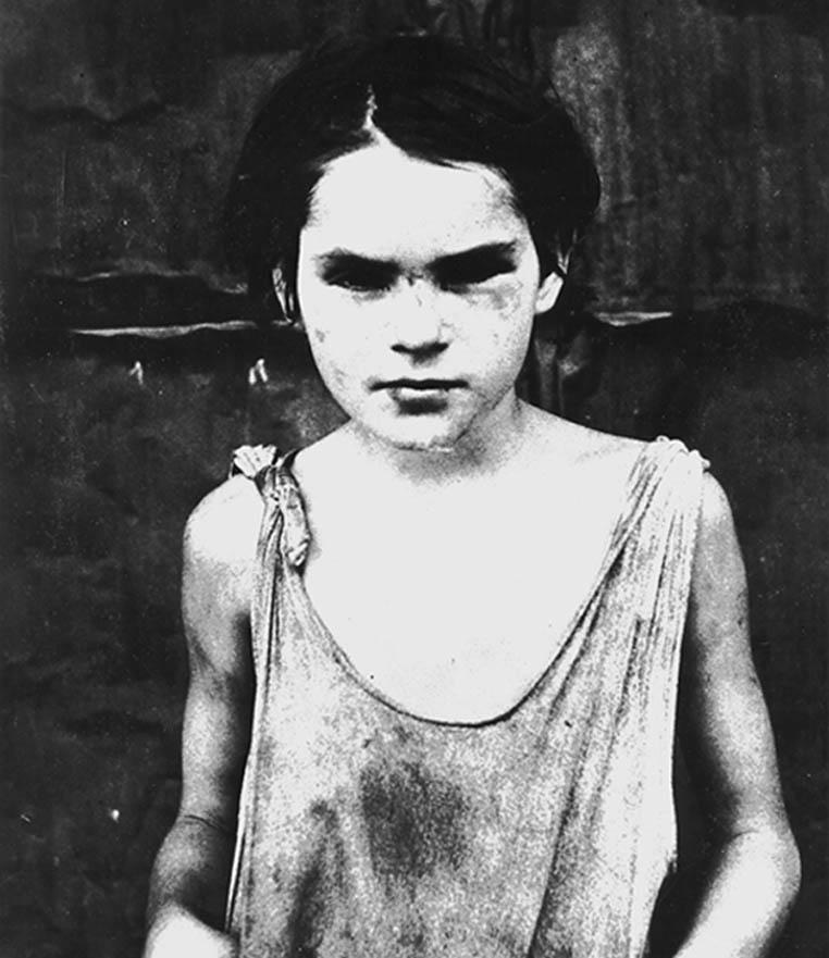 Damaged child, Shacktown, Oklahoma. Dorothea Lange photo